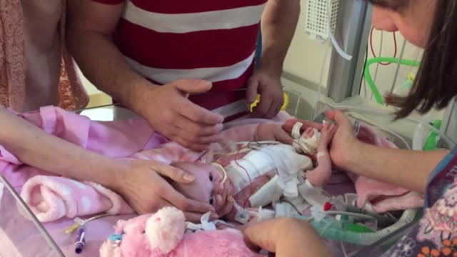 Baby Vanellope Hope has an extremely rare condition ectopia cordis which had her heart growing on the outside of her body 50 clinical staff at...