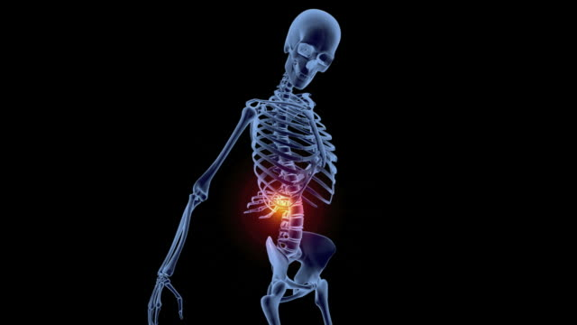 back pain, conceptual animation. lower back pain, or lumbago, is a very common medical condition, and affects most people at some point in their lives - hernia stock videos and b-roll footage