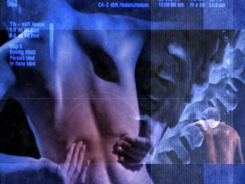back pain - människoryggrad bildbanksvideor och videomaterial från bakom kulisserna