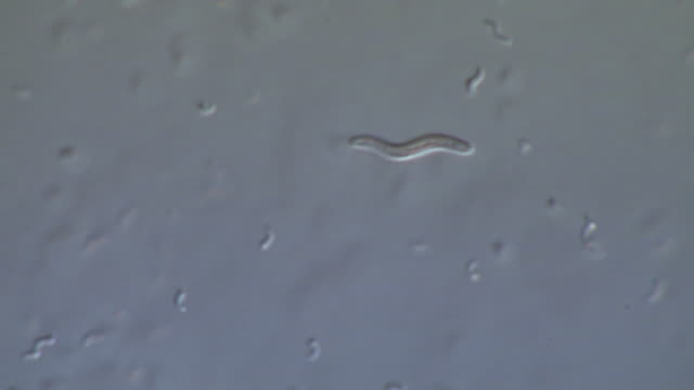 bacteria from a stagnant pond, incl vibrio. - biohazard symbol stock videos & royalty-free footage