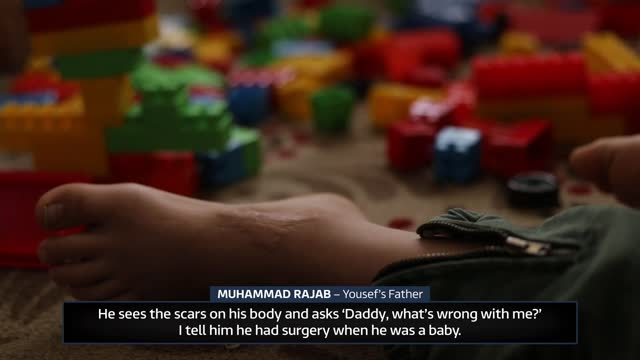 badly injured syrian refugee yousef rajab helped by fund raising by british man; turkey: int various of yousef rajab, a syrian boy who was badly... - war and conflict video stock e b–roll