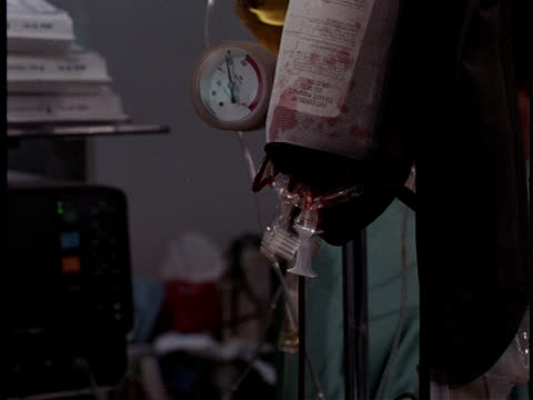 a bag delivers blood through iv into a patient's arm. - drip bag stock videos and b-roll footage