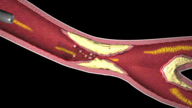 Balloon angioplasty and the insertion of a stent to widen an artery blocked by plaques of atheroma
