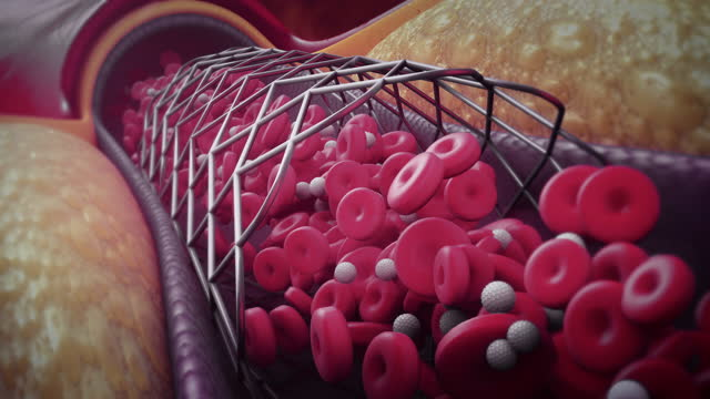 balloon angioplasty - blood flow stock videos & royalty-free footage