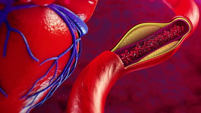 balloon angioplasty - artery stock videos & royalty-free footage