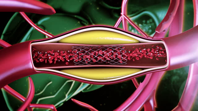 balloon angioplasty - bbc stock videos & royalty-free footage