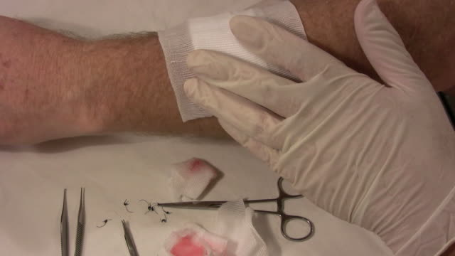bandage on an arm hd - surgical scissors stock videos & royalty-free footage