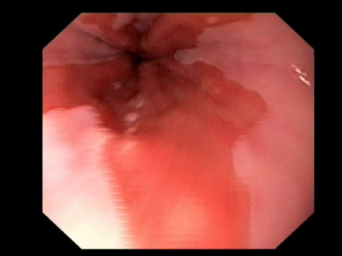 barretts oesophagus and hiatus hernia, endoscopic view.. - hernia stock videos and b-roll footage