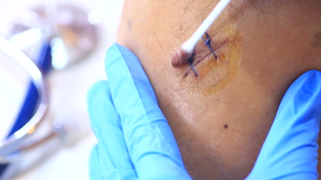 bathe the suture by docter - scar stock videos and b-roll footage