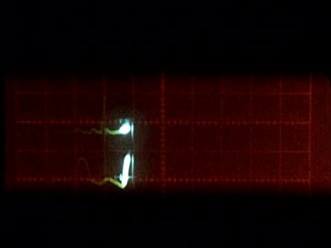 1960 cu beating heart on an electrocardiogram/ audio - grid stock videos & royalty-free footage