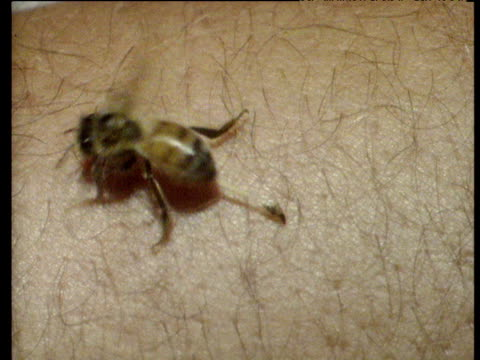 bee leaves stinger tail embedded in human skin - stechen stock-videos und b-roll-filmmaterial