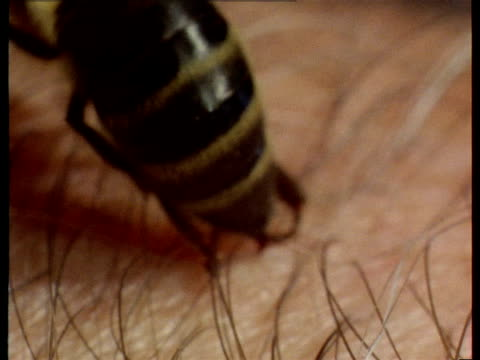 a bee stings a human arm. - stinging stock videos & royalty-free footage