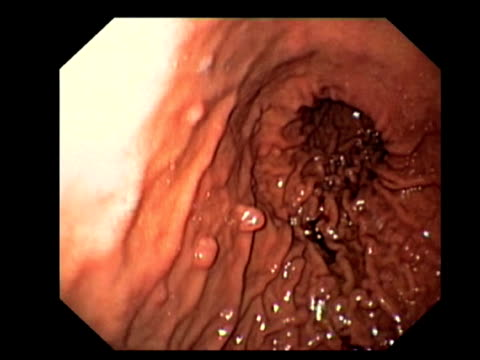 benign stomach growths. endoscopic view of the stomach lining (gastric mucosa), showing numerous benign (non-cancerous) hyperplastic gastric polyps (round).. - human intestine stock videos and b-roll footage