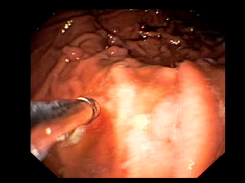 benign stomach growths. endoscopic view of the stomach lining (gastric mucosa), showing numerous benign (non-cancerous) hyperplastic gastric polyps (round).. - polyp bildbanksvideor och videomaterial från bakom kulisserna