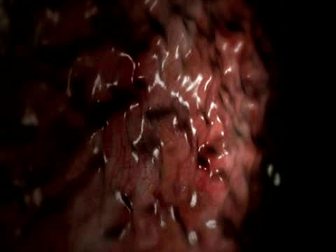 blastocyst implantation - altri temi video stock e b–roll