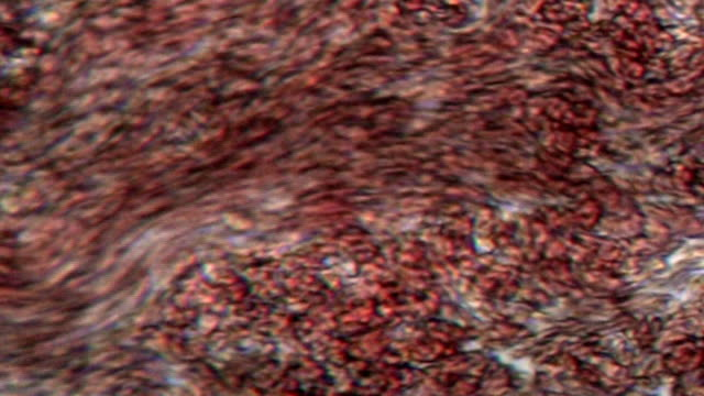 stockvideo's en b-roll-footage met blood cells - vergroting
