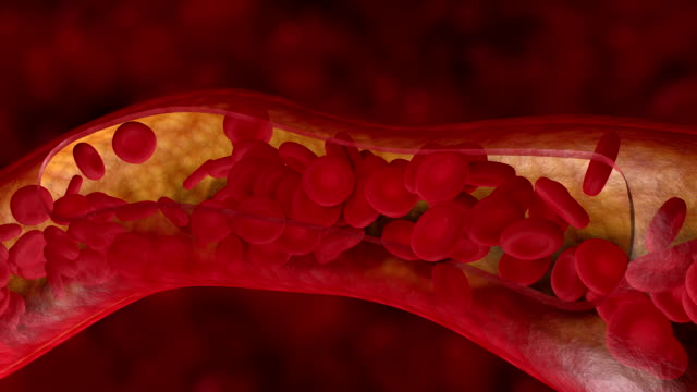 Blood clot in human artery or vein