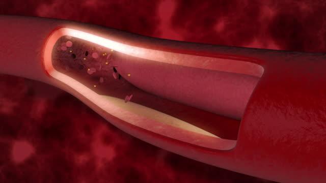 vídeos y material grabado en eventos de stock de coágulo sanguíneo en las venas - colesterol