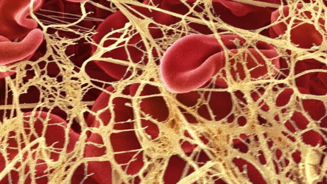 """blood clot, sem"" - micrografia elettronica a scansione video stock e b–roll"