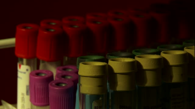blood collection vials fill a container. - blood test stock videos & royalty-free footage