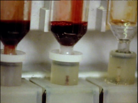 Blood collects in vial of DNA sequencing machine