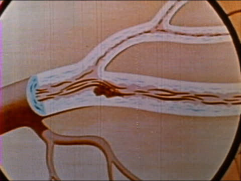 ANIMATION blood flowing through arteries / artery becoming blocked