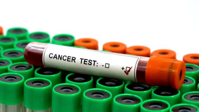 がんのための血液 - 卵巣点の映像素材/bロール