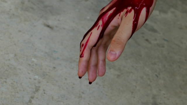 blood from a wound on hand. - accessibility stock videos & royalty-free footage