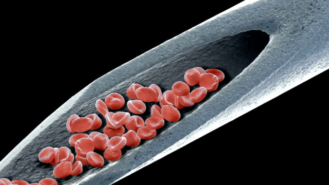 blood on a needle, sem - blood donation stock videos and b-roll footage