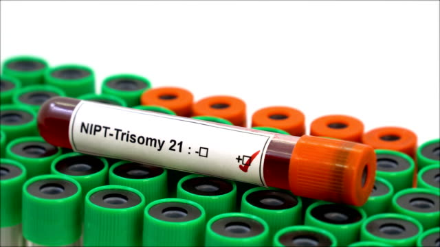 blood sample for nipt-trisomy 21 test - chromosome stock videos & royalty-free footage