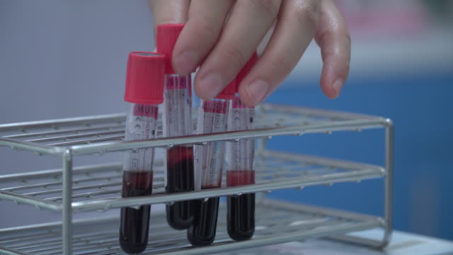 vídeos de stock e filmes b-roll de blood samples in tubes - diabetes
