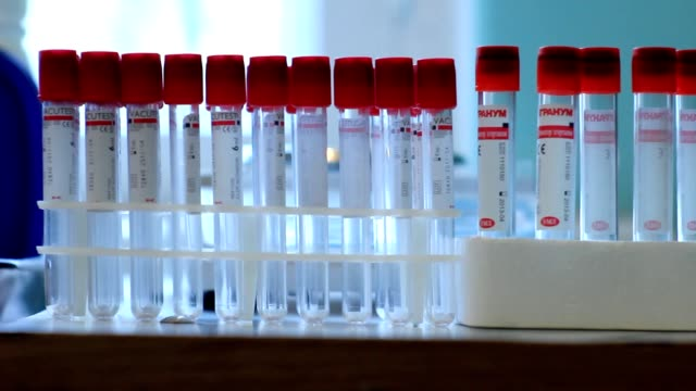vídeos de stock e filmes b-roll de teste de vih no sangue a sonda - hiv
