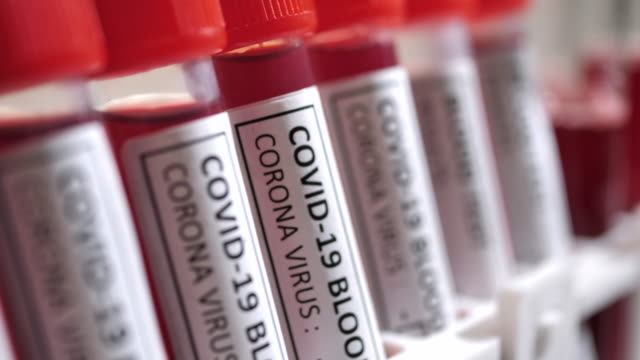 covid-19 blood test tube - tube stock videos & royalty-free footage