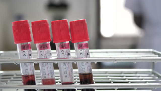Blood tube in laboratory