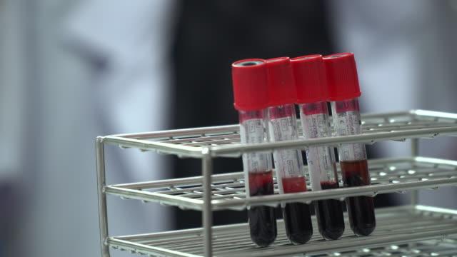 血液チューブ - ラテックス点の映像素材/bロール