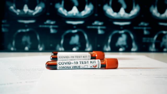 stockvideo's en b-roll-footage met bloedbuis met coronavirus (covid-19) label en lungs ct onderzoeksbeeld - medisch specimen