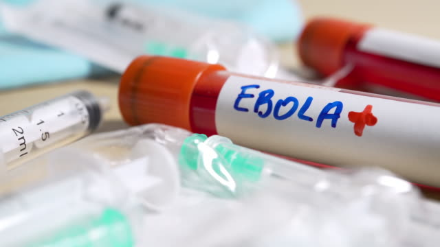 vídeos de stock, filmes e b-roll de tubo de sangue com etiqueta de ebola - ébola