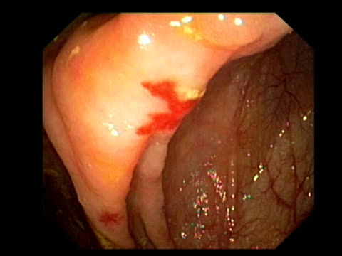 blood vessel tumour. endoscopic view of a caecal haemangioma, a benign (non-cancerous) tumour of the blood vessels and a common cause of gastrointestinal bleeding.. - 盲腸点の映像素材/bロール