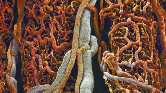 blood vessels from the external wall of the small intestine, coloured scanning electron micrograph (sem). - 小腸点の映像素材/bロール