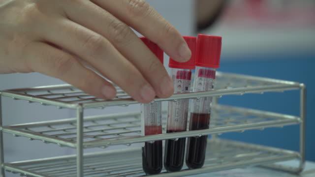 vídeos de stock, filmes e b-roll de sangue - plasma matéria
