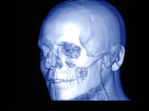 Blue computer generated image close up rotating transparent human face with skull visible inside