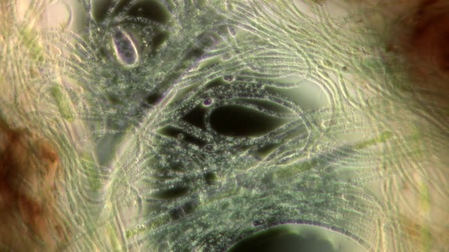blue-green algae (cyanobacteria) showing their characteristic gliding motion and large heterocysts. filmed with darkfield micrography - cianobatterio video stock e b–roll