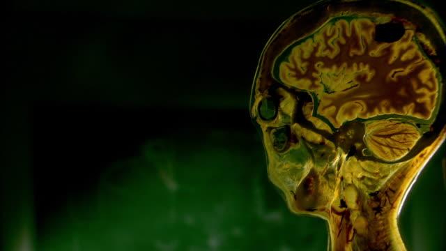 body part, medicine, pelvis - pelvis stock videos & royalty-free footage
