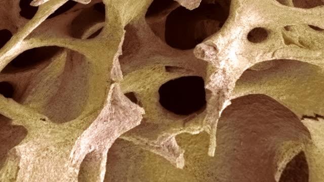 """vídeos de stock e filmes b-roll de """"bone tissue, sem"""" - osso esponjoso"""