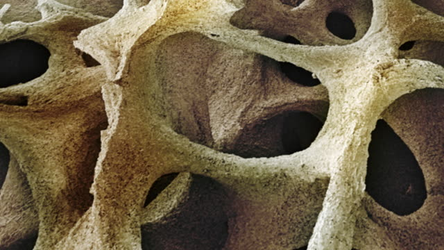 """bone tissue, sem"" - magnification stock videos & royalty-free footage"