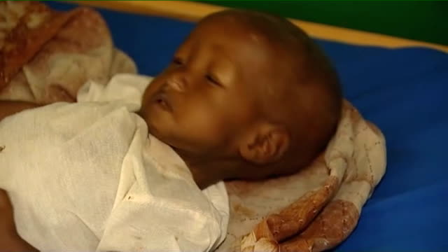 stockvideo's en b-roll-footage met bosasso int malnourished babies crying and being held by mothers in hospital child with tube attached to nose and baby having drugs administered by... - aan elkaar bevestigd