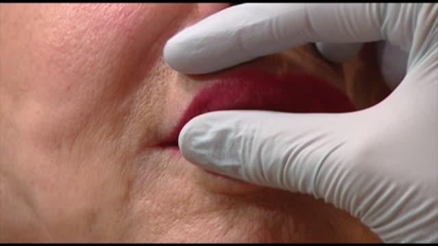 vídeos y material grabado en eventos de stock de botox injection - guante quirúrgico