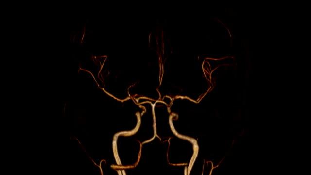脳動脈 - 血管点の映像素材/bロール