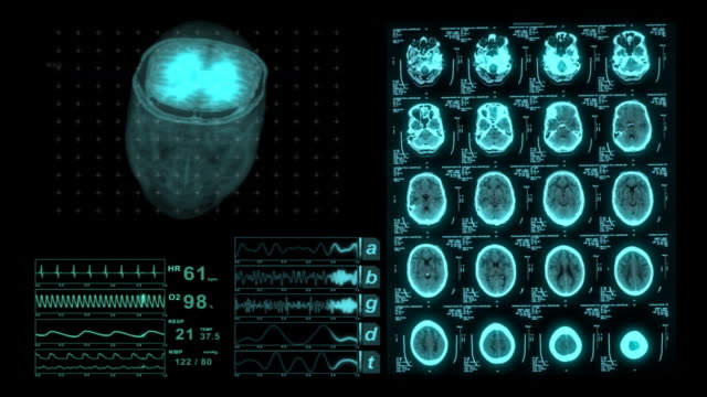 stockvideo's en b-roll-footage met brain cat scan medical xray monitor display - biomedische illustratie