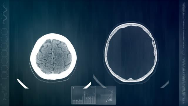 vídeos de stock, filmes e b-roll de cérebro análise. - tumor cerebral